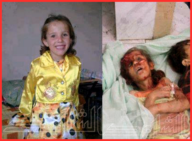 """Syrian child, tortured, raped & tortured"""